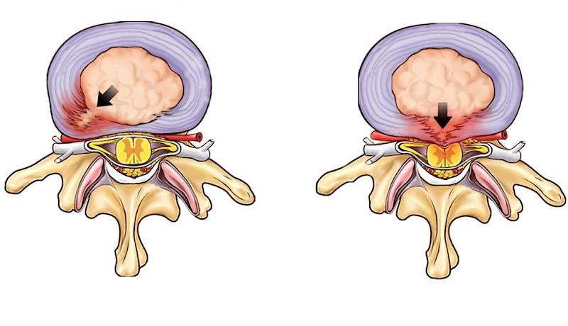 Hernia - Hoe kun je genezing van hernia versnellen